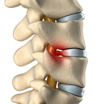 Spinal disc hernation